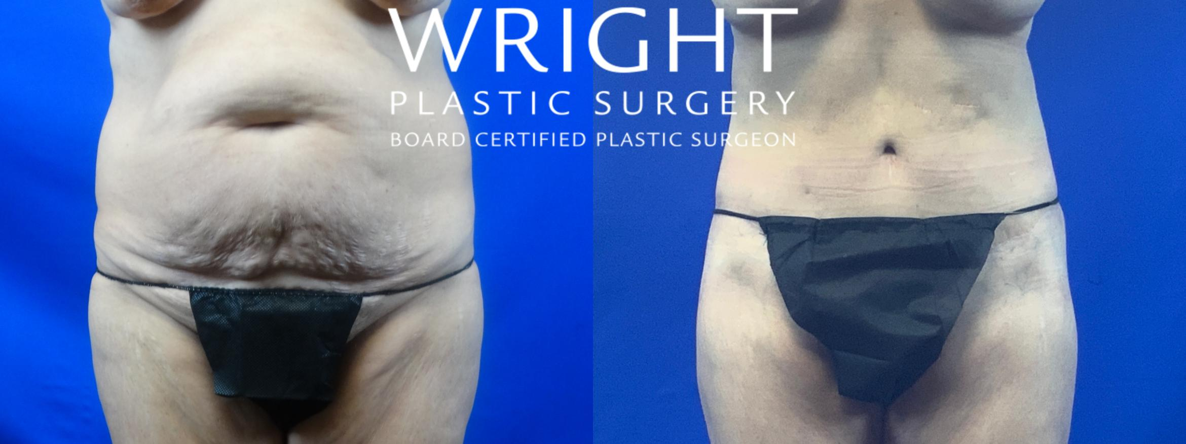 Body Lift Case 51 Before & After Front | Little Rock, Arkansas | Dr. Wright Plastic Surgery