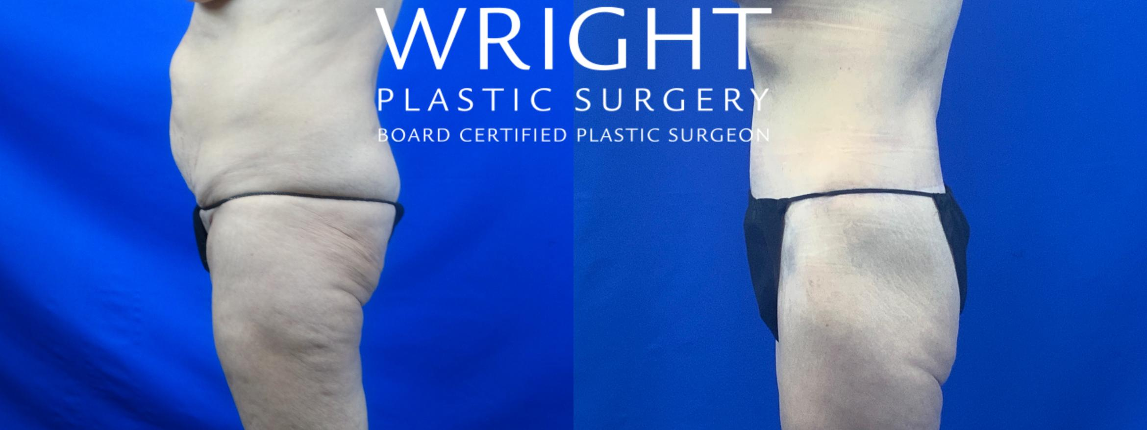 Body Lift Case 51 Before & After Left Side | Little Rock, Arkansas | Dr. Wright Plastic Surgery