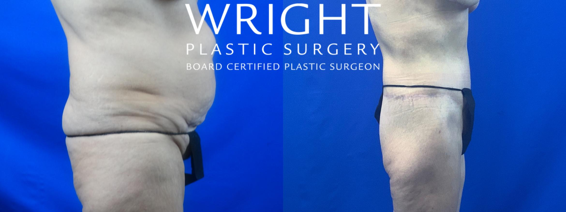 Body Lift Case 51 Before & After Right Side | Little Rock, Arkansas | Dr. Wright Plastic Surgery