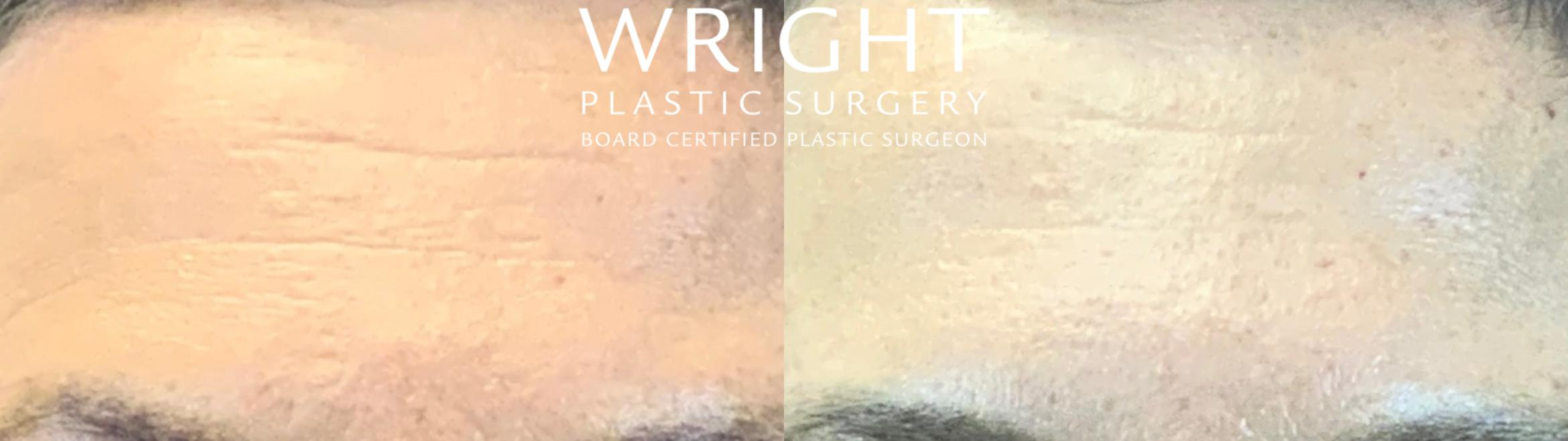 BOTOX® Cosmetic Case 49 Before & After Front | Little Rock, Arkansas | Dr. Wright Plastic Surgery
