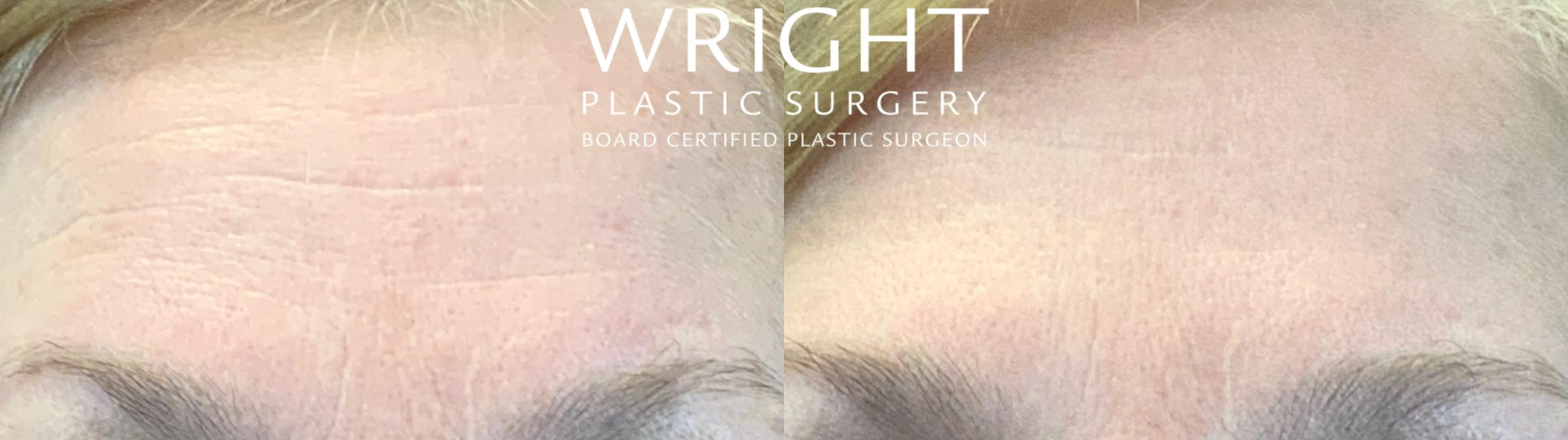 BOTOX® Cosmetic Case 53 Before & After Front | Little Rock, Arkansas | Dr. Wright Plastic Surgery