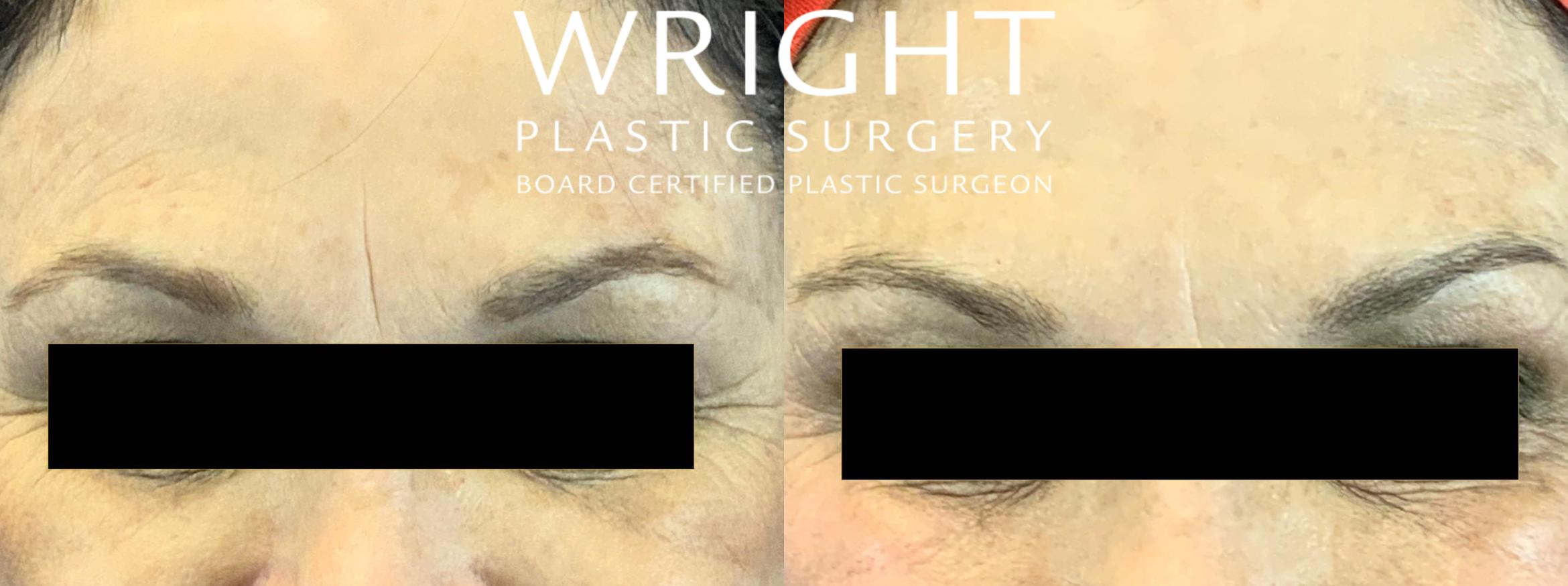 BOTOX® Cosmetic Case 54 Before & After Front | Little Rock, Arkansas | Dr. Wright Plastic Surgery