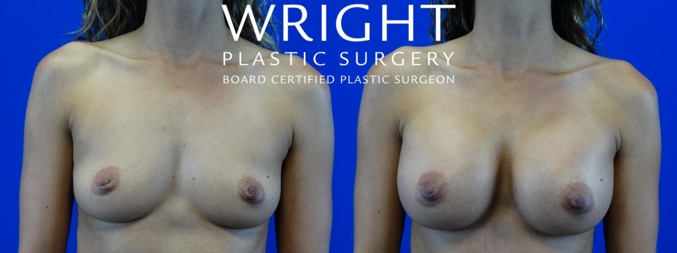 Breast Augmentation Case 1 Before & After Front | Little Rock, Arkansas | Dr. Wright Plastic Surgery