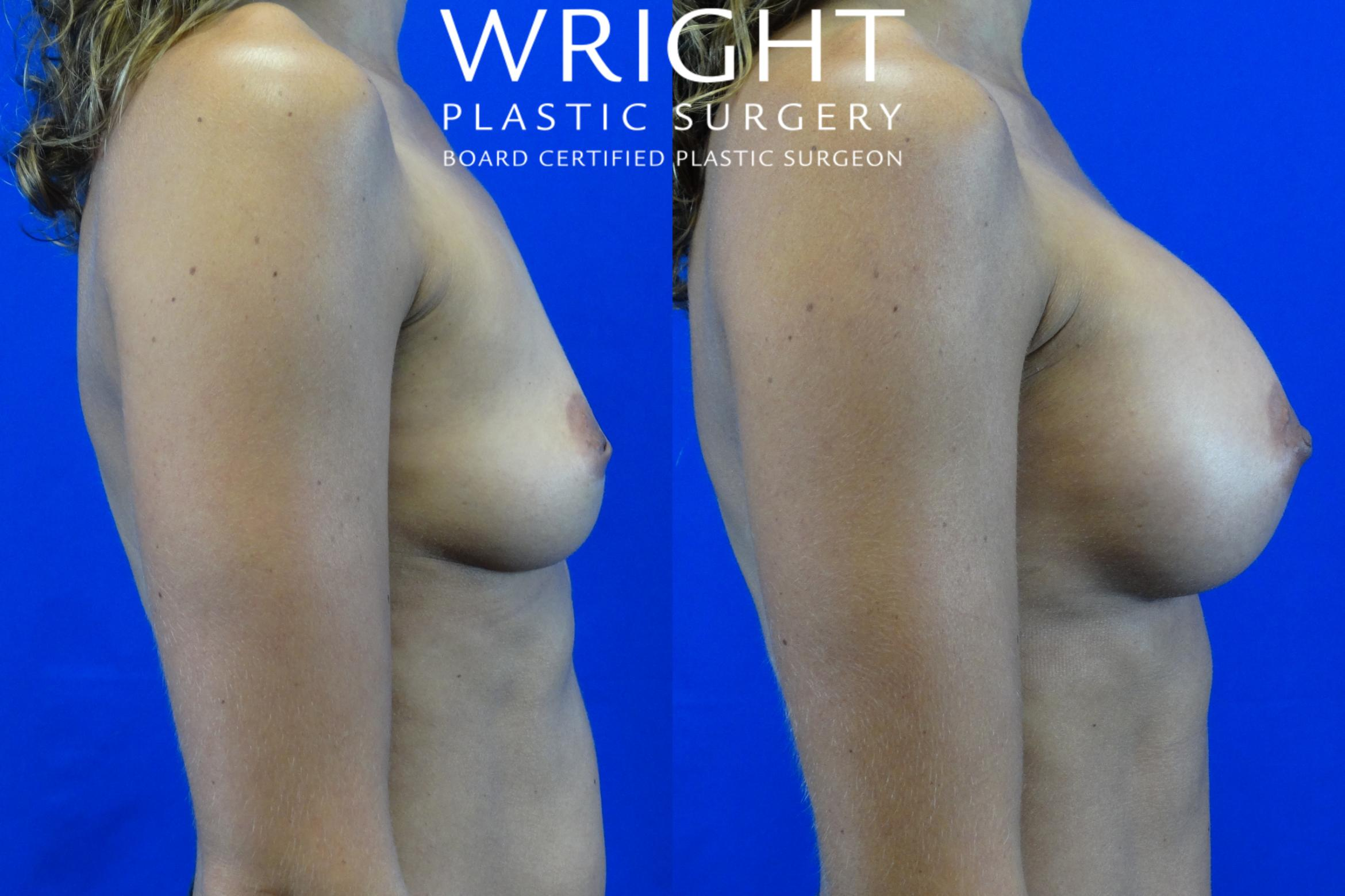 Breast Augmentation Case 1 Before & After Right Side | Little Rock, Arkansas | Dr. Wright Plastic Surgery