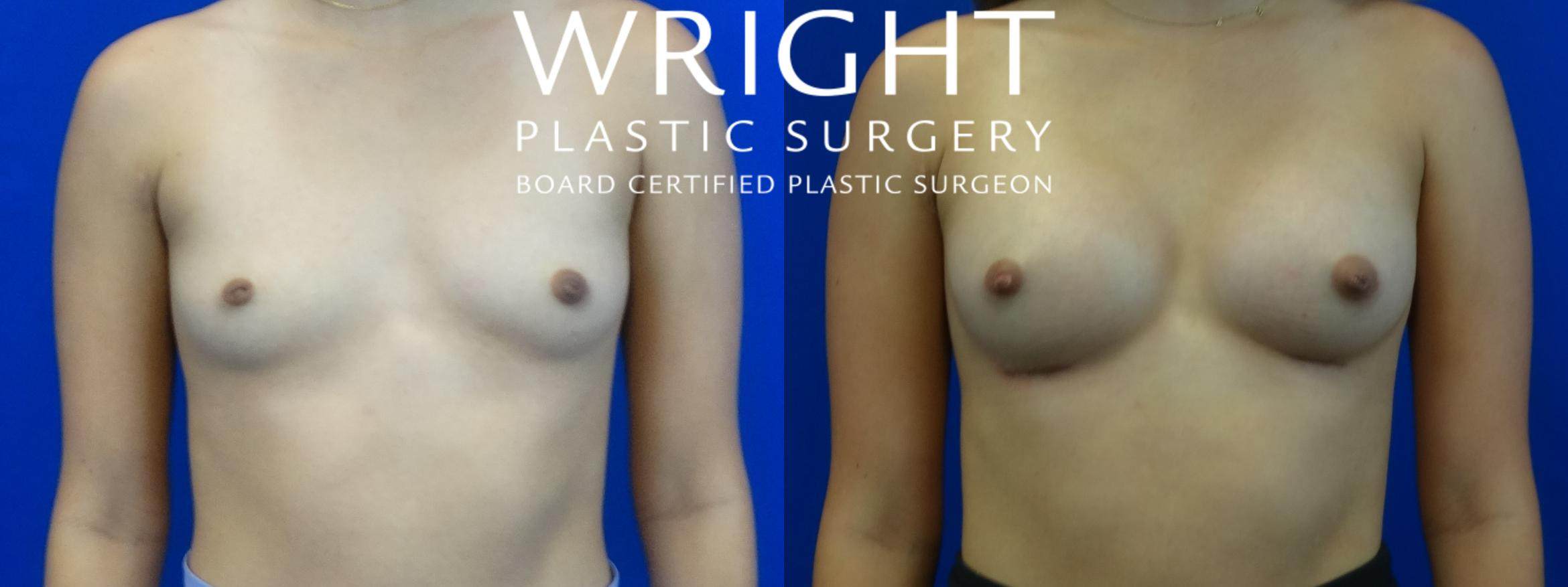 Breast Augmentation Case 18 Before & After Front | Little Rock, Arkansas | Dr. Wright Plastic Surgery