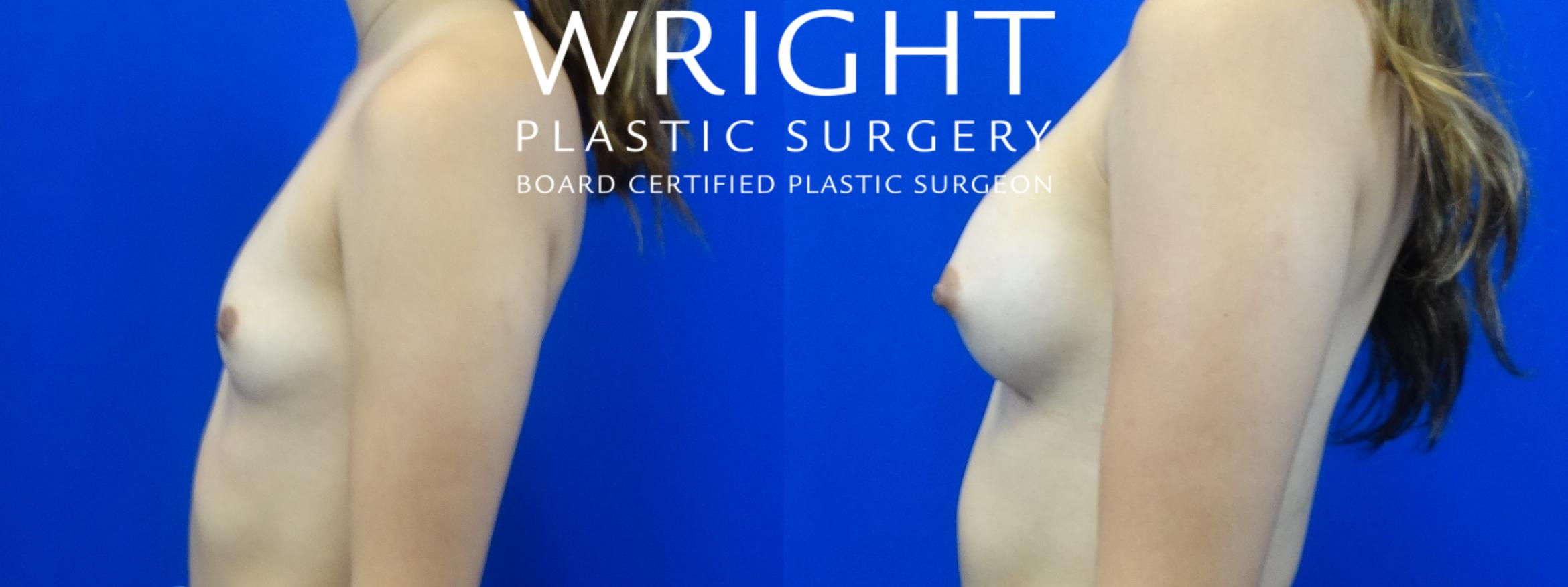 Breast Augmentation Case 18 Before & After Left Side | Little Rock, Arkansas | Dr. Wright Plastic Surgery