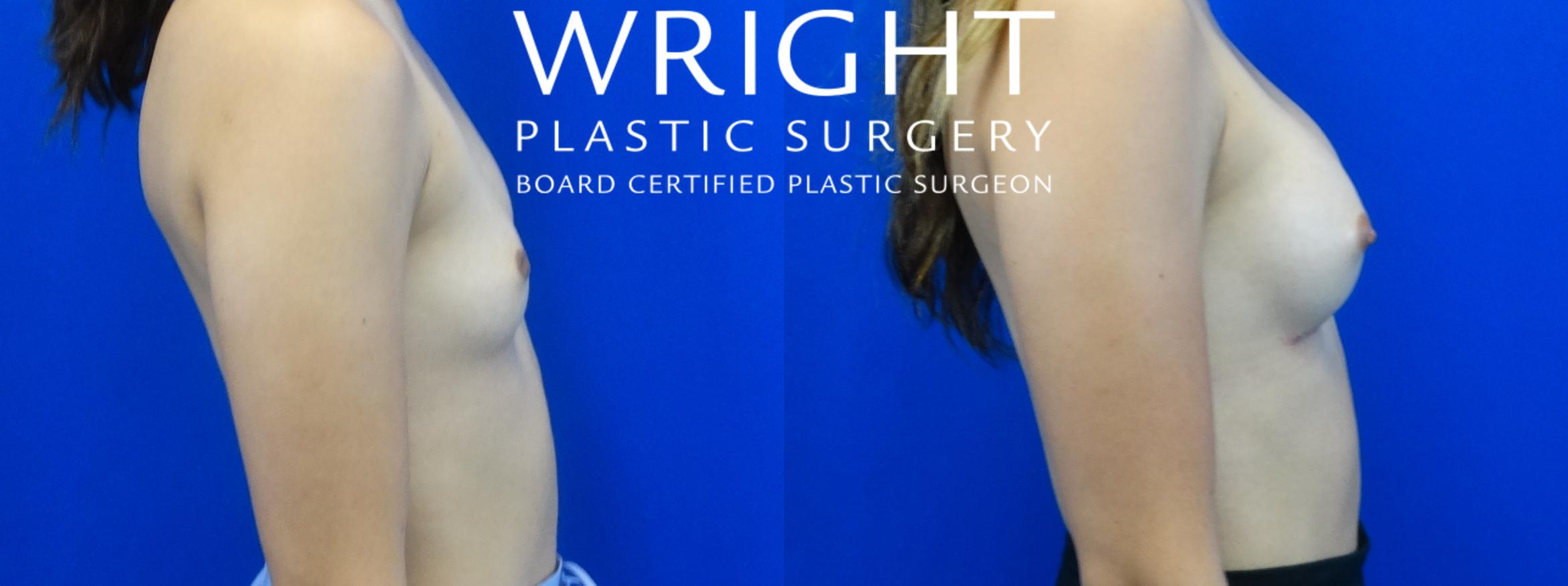 Breast Augmentation Case 18 Before & After Right Side | Little Rock, Arkansas | Dr. Wright Plastic Surgery