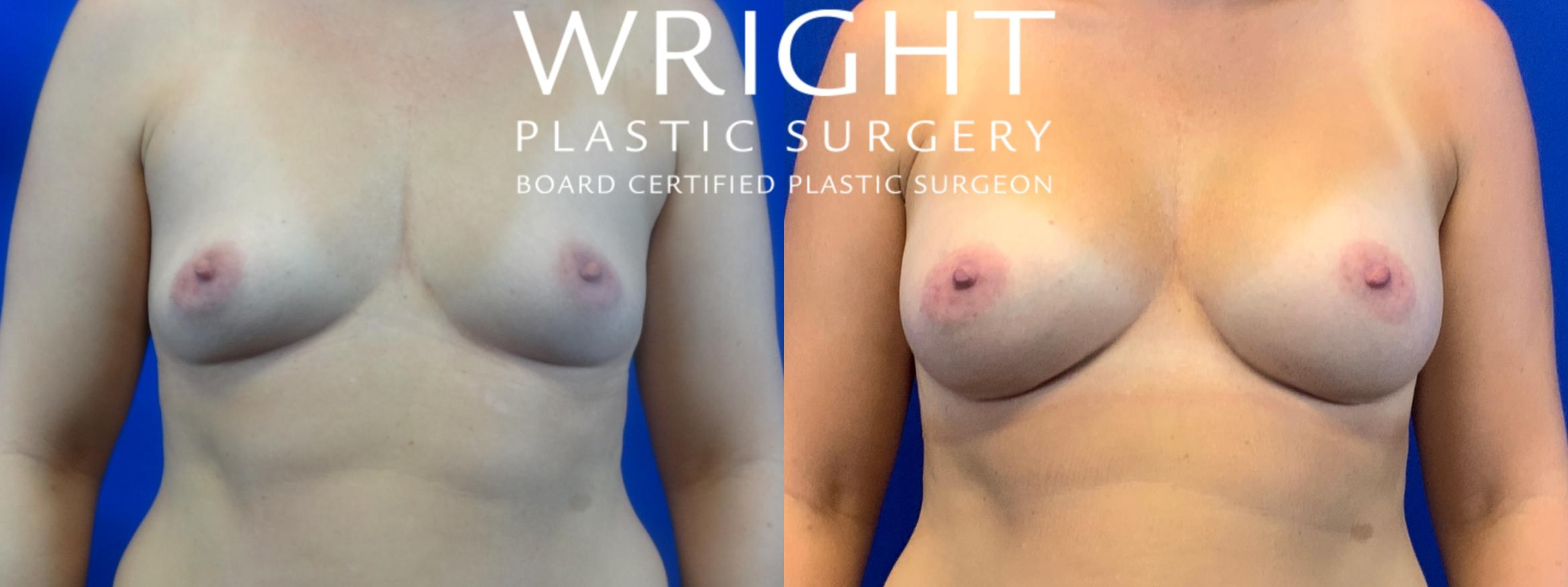 Breast Augmentation Case 31 Before & After Front | Little Rock, Arkansas | Dr. Wright Plastic Surgery