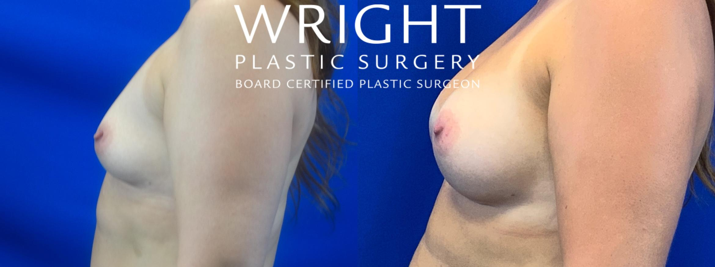 Breast Augmentation Case 31 Before & After Left Side | Little Rock, Arkansas | Dr. Wright Plastic Surgery