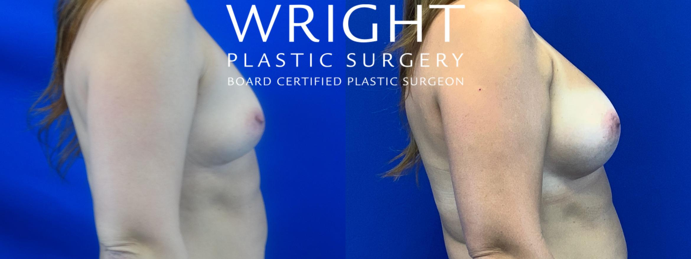 Breast Augmentation Case 31 Before & After Right Side | Little Rock, Arkansas | Dr. Wright Plastic Surgery