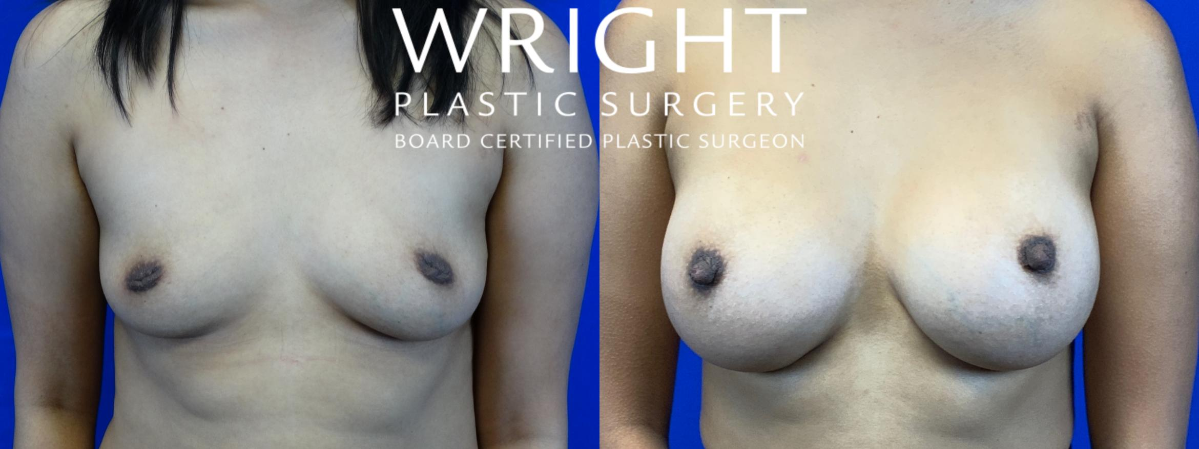 Breast Augmentation Case 55 Before & After Front | Little Rock, Arkansas | Dr. Wright Plastic Surgery