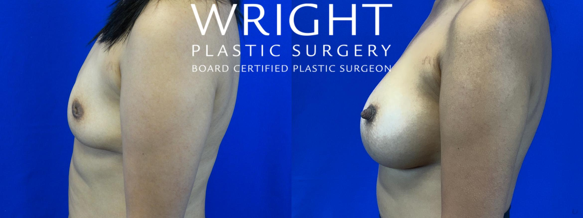 Breast Augmentation Case 55 Before & After Left Side | Little Rock, Arkansas | Dr. Wright Plastic Surgery