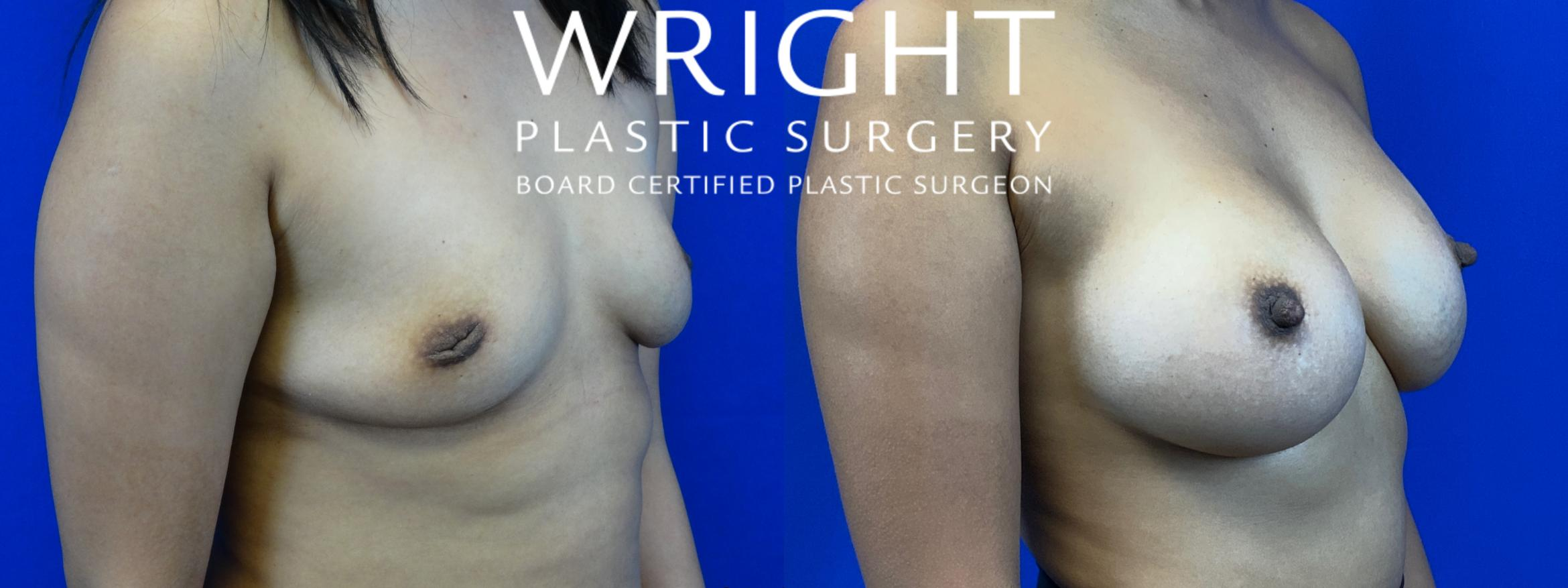 Breast Augmentation Case 55 Before & After Right Oblique | Little Rock, Arkansas | Dr. Wright Plastic Surgery