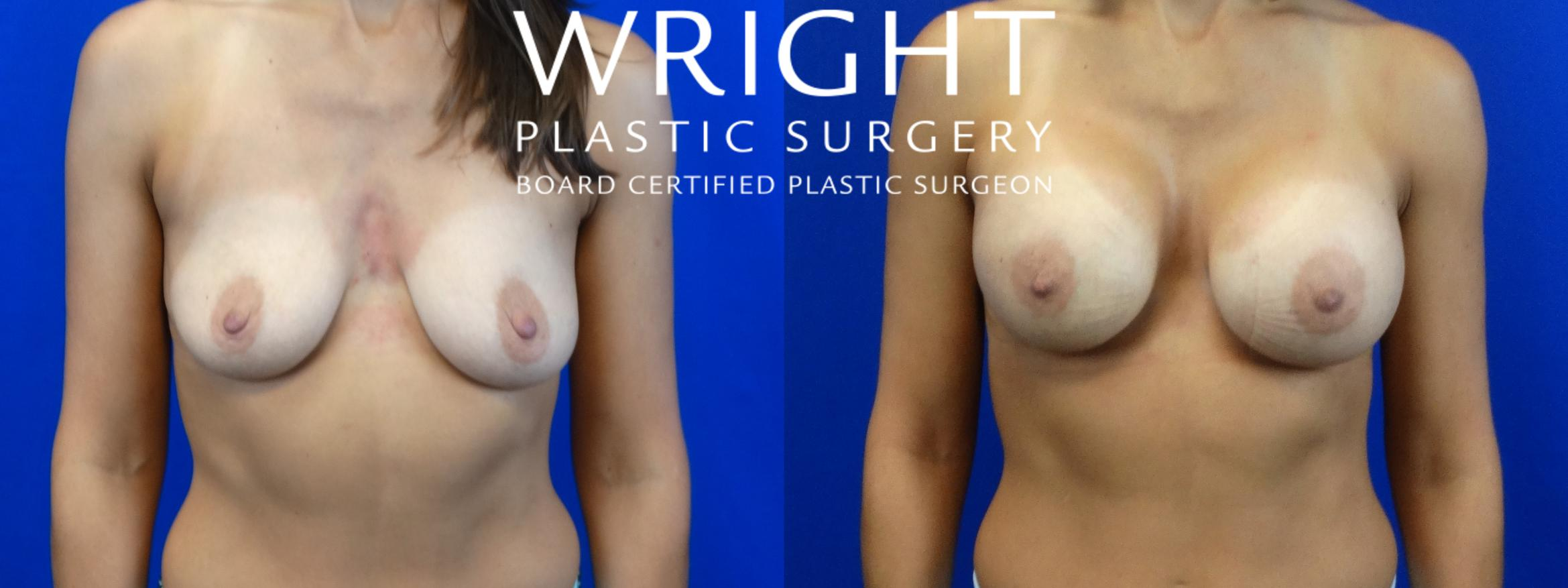 Breast Augmentation Case 8 Before & After Front | Little Rock, Arkansas | Dr. Wright Plastic Surgery