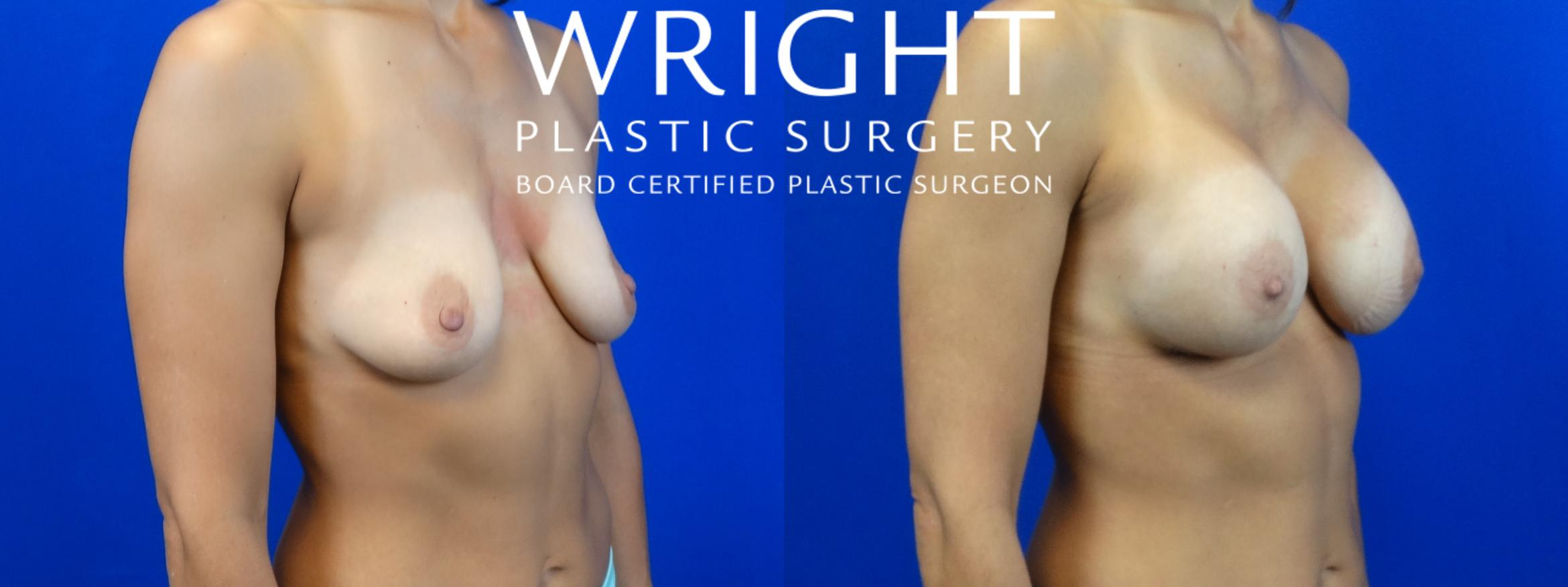 Breast Augmentation Case 8 Before & After Right Oblique | Little Rock, Arkansas | Dr. Wright Plastic Surgery