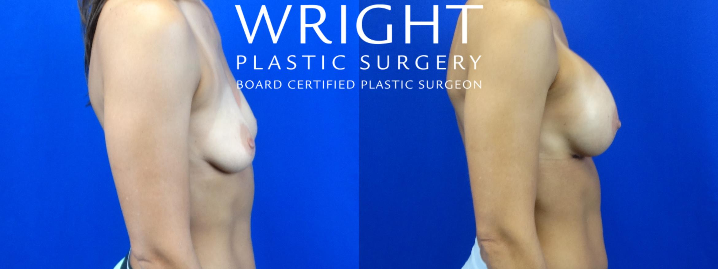 Breast Augmentation Case 8 Before & After Right Side | Little Rock, Arkansas | Dr. Wright Plastic Surgery
