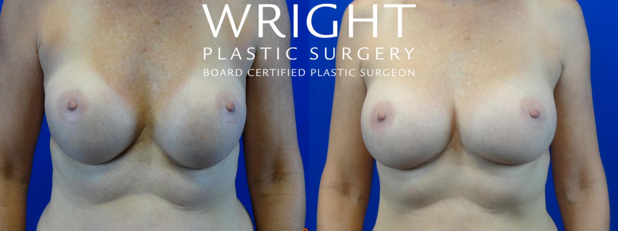 Breast Implant Exchange Case 40 Before & After Front | Little Rock, Arkansas | Dr. Wright Plastic Surgery
