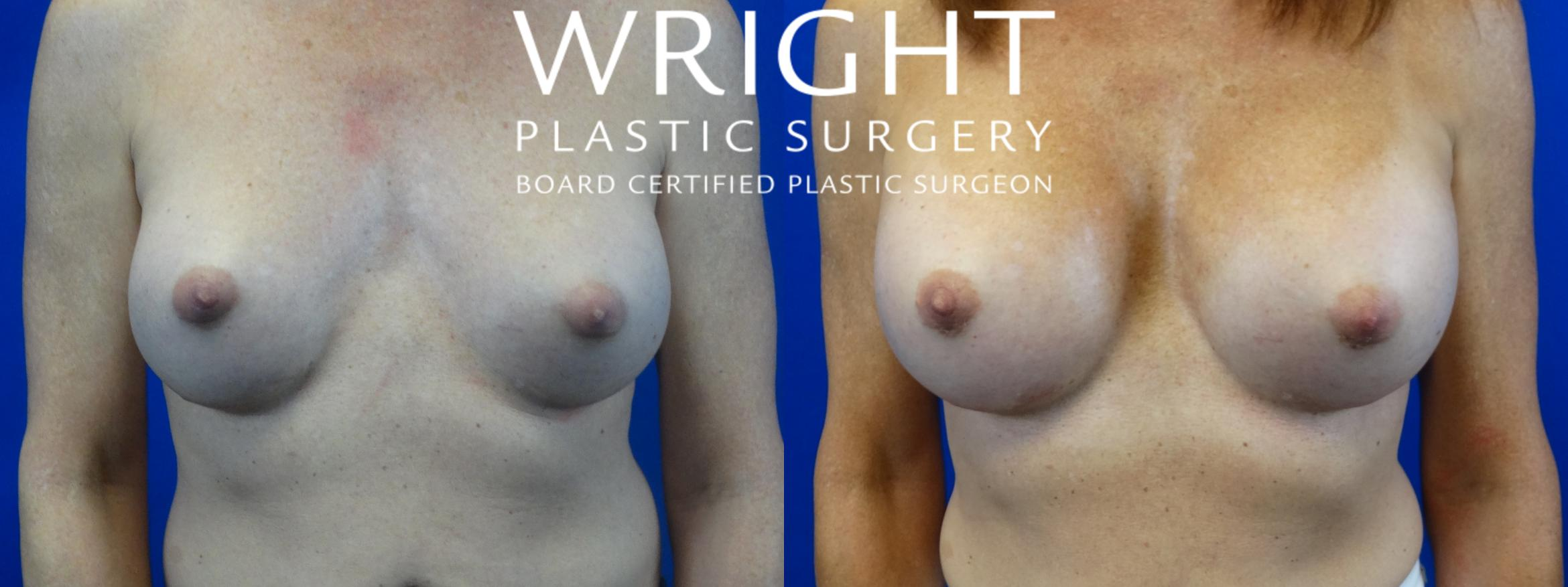 Breast Implant Exchange Case 41 Before & After Front | Little Rock, Arkansas | Dr. Wright Plastic Surgery