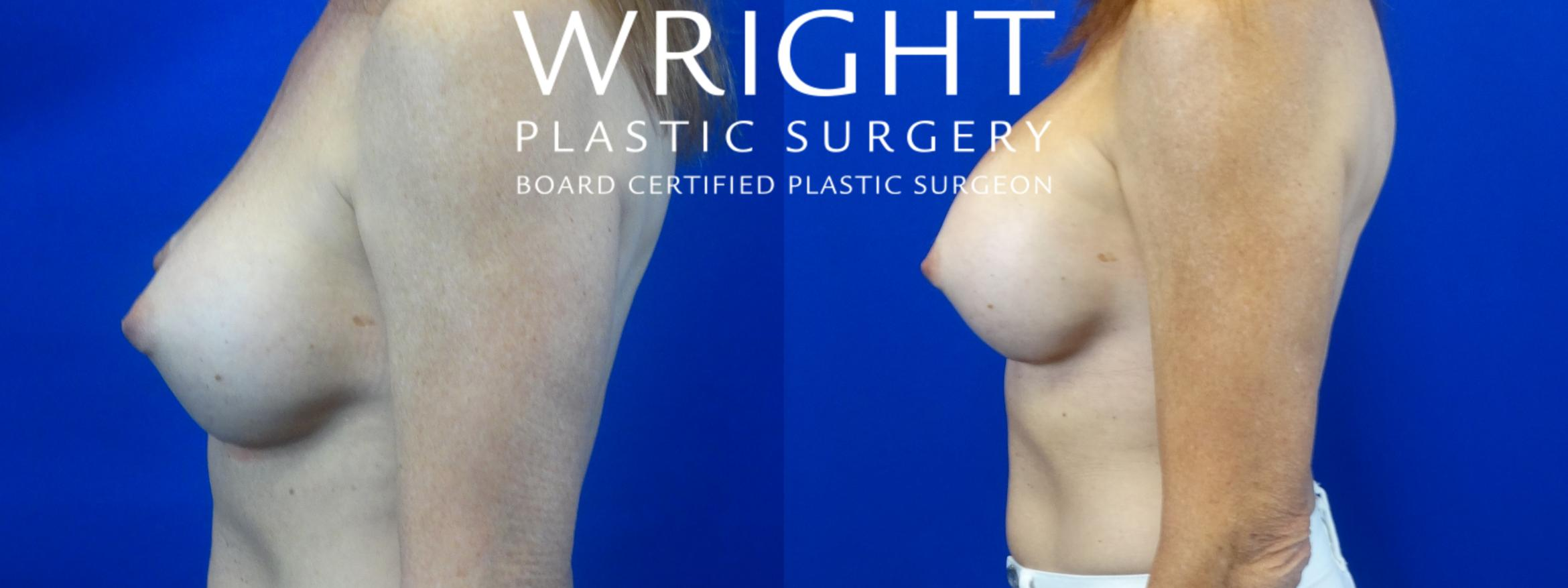 Breast Implant Exchange Case 41 Before & After Left Side | Little Rock, Arkansas | Dr. Wright Plastic Surgery