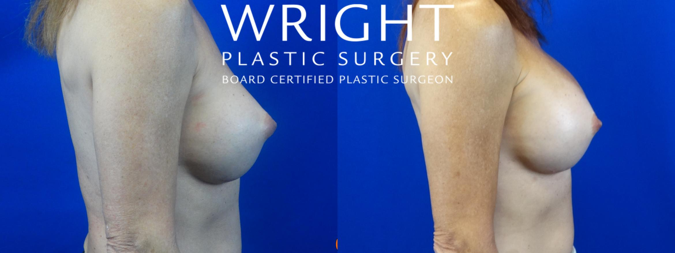 Breast Implant Exchange Case 41 Before & After Right Side | Little Rock, Arkansas | Dr. Wright Plastic Surgery