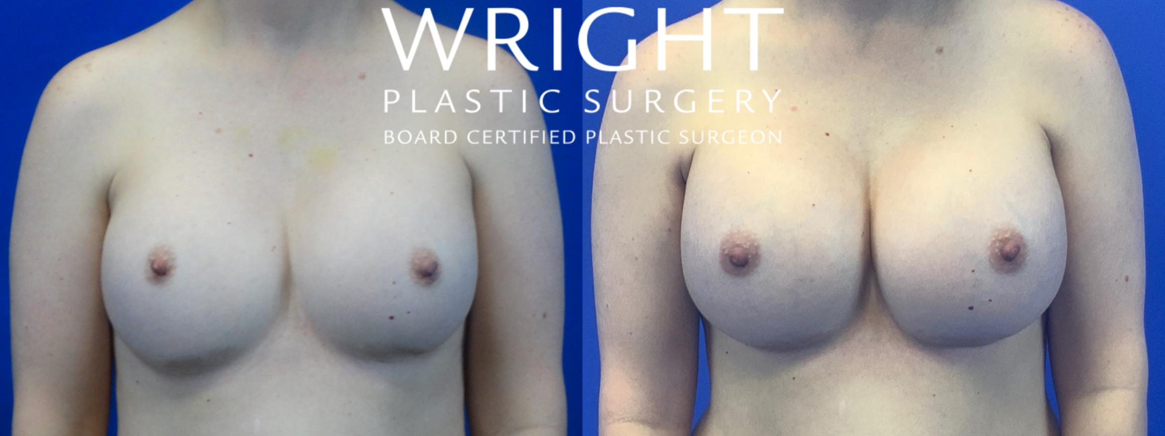 Breast Implant Exchange Case 42 Before & After Front | Little Rock, Arkansas | Dr. Wright Plastic Surgery