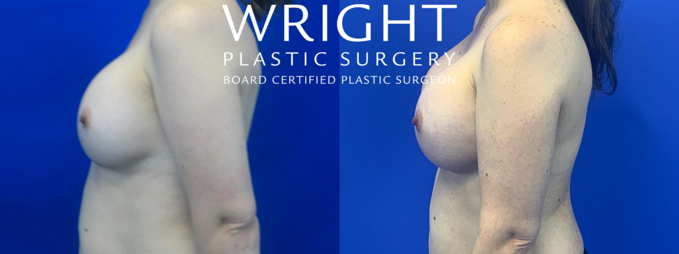 Breast Implant Exchange Case 42 Before & After Left Side | Little Rock, Arkansas | Dr. Wright Plastic Surgery