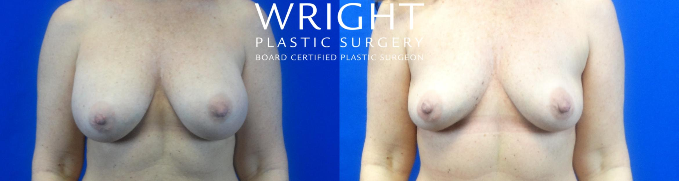 Breast Implant Removal Case 10 Before & After Front | Little Rock, Arkansas | Dr. Wright Plastic Surgery