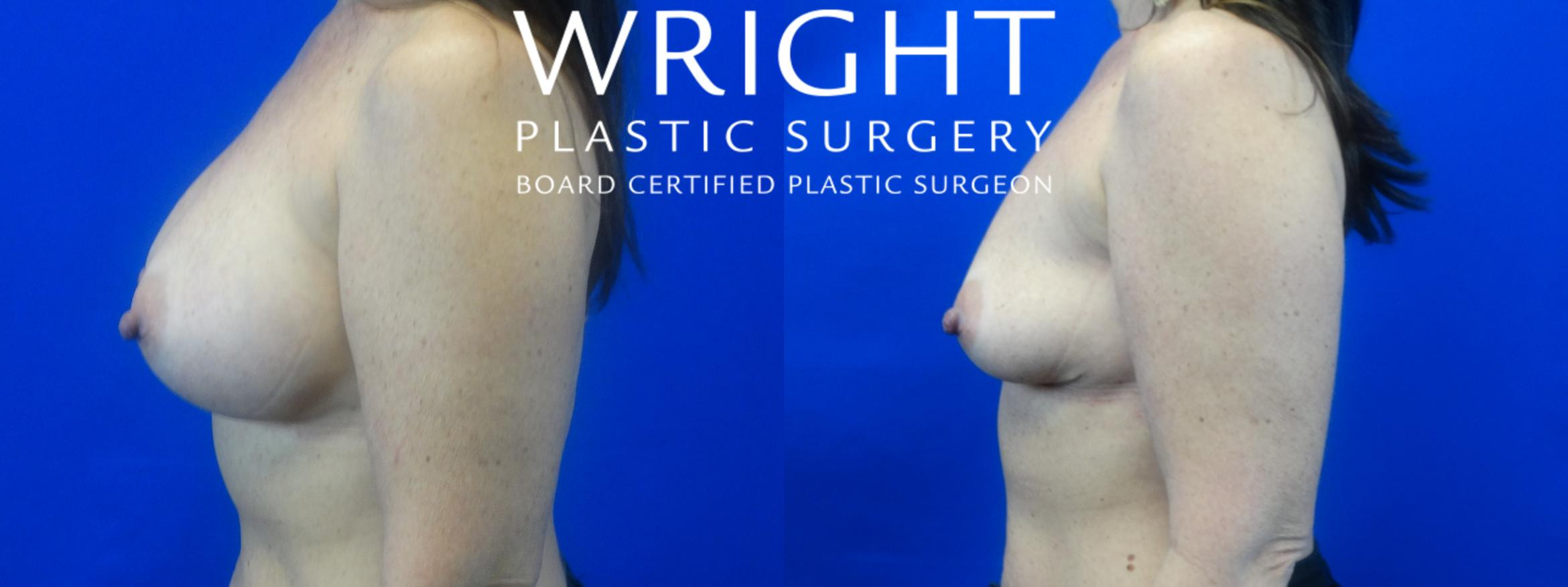 Breast Implant Removal Case 10 Before & After Left Side | Little Rock, Arkansas | Dr. Wright Plastic Surgery
