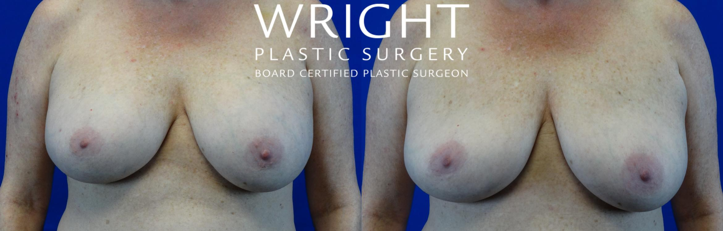 Breast Implant Removal Case 11 Before & After Front | Little Rock, Arkansas | Dr. Wright Plastic Surgery