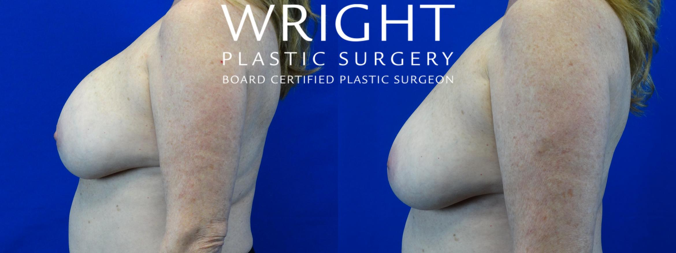 Breast Implant Removal Case 11 Before & After Left Side | Little Rock, Arkansas | Dr. Wright Plastic Surgery