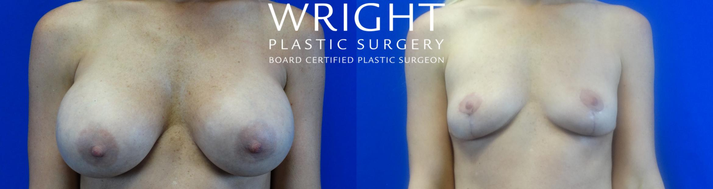 Breast Implant Removal Case 16 Before & After Front | Little Rock, Arkansas | Dr. Wright Plastic Surgery