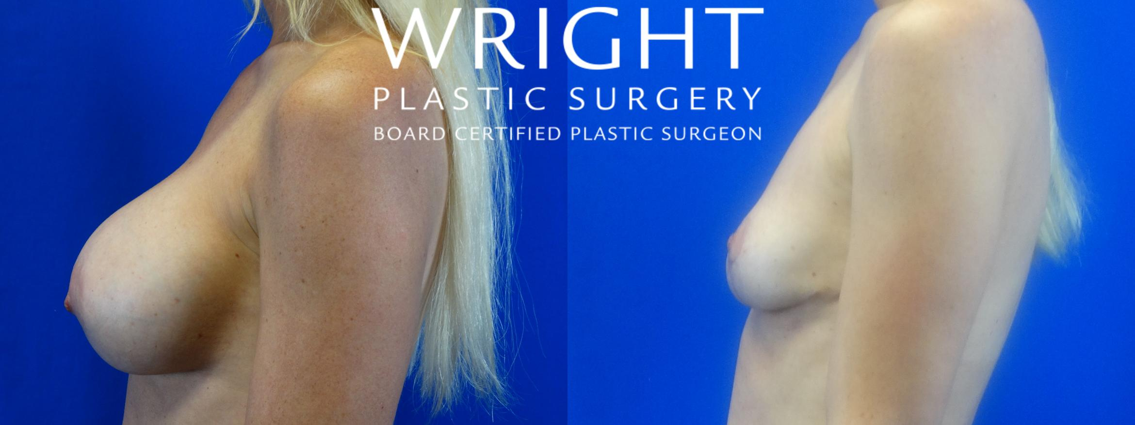 Breast Implant Removal Case 16 Before & After Left Side | Little Rock, Arkansas | Dr. Wright Plastic Surgery