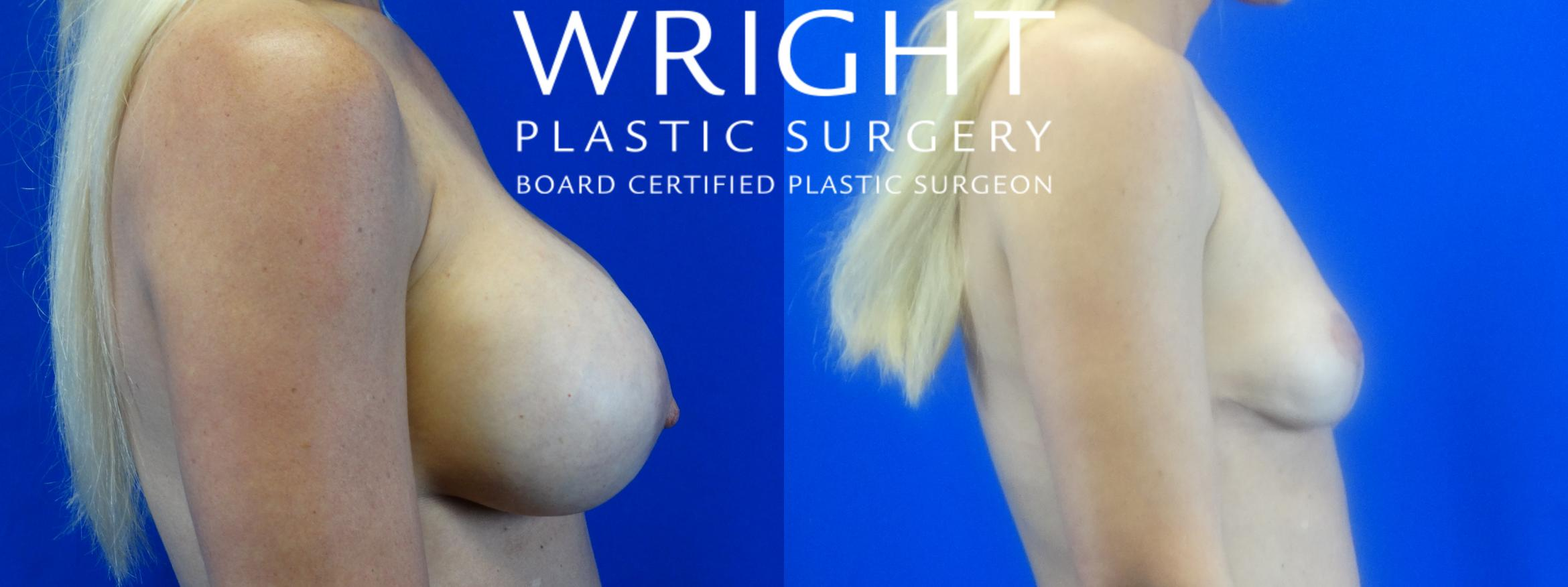 Breast Implant Removal Case 16 Before & After Right Side | Little Rock, Arkansas | Dr. Wright Plastic Surgery