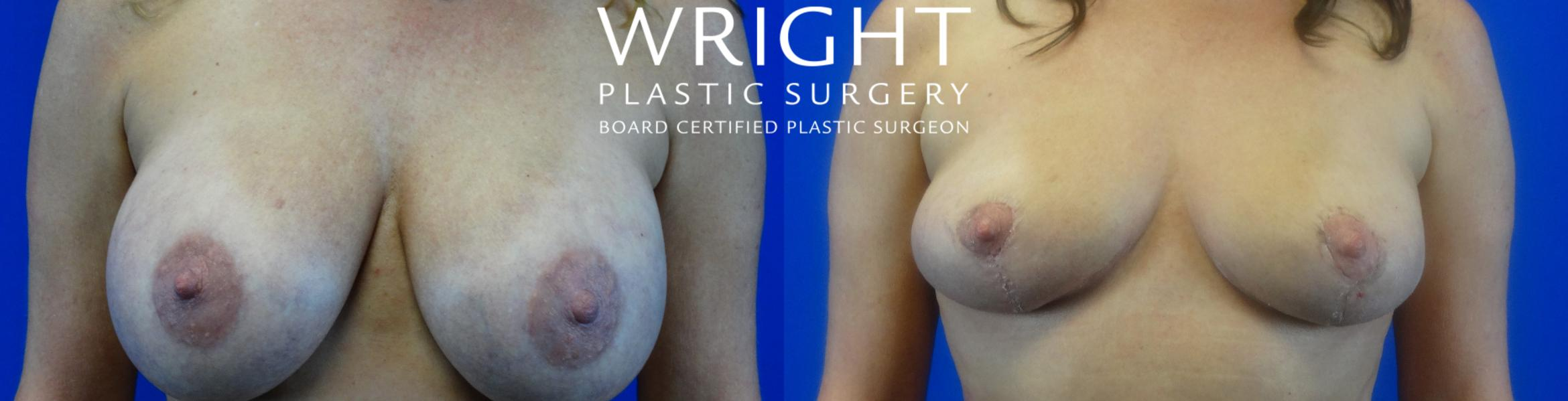 Breast Implant Removal Case 17 Before & After Front | Little Rock, Arkansas | Dr. Wright Plastic Surgery