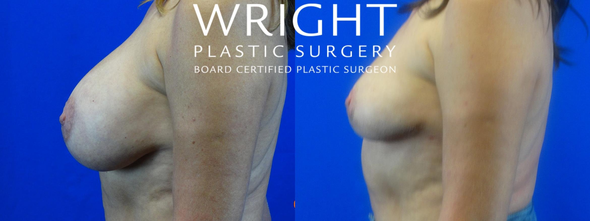 Breast Implant Removal Case 17 Before & After Left Side | Little Rock, Arkansas | Dr. Wright Plastic Surgery
