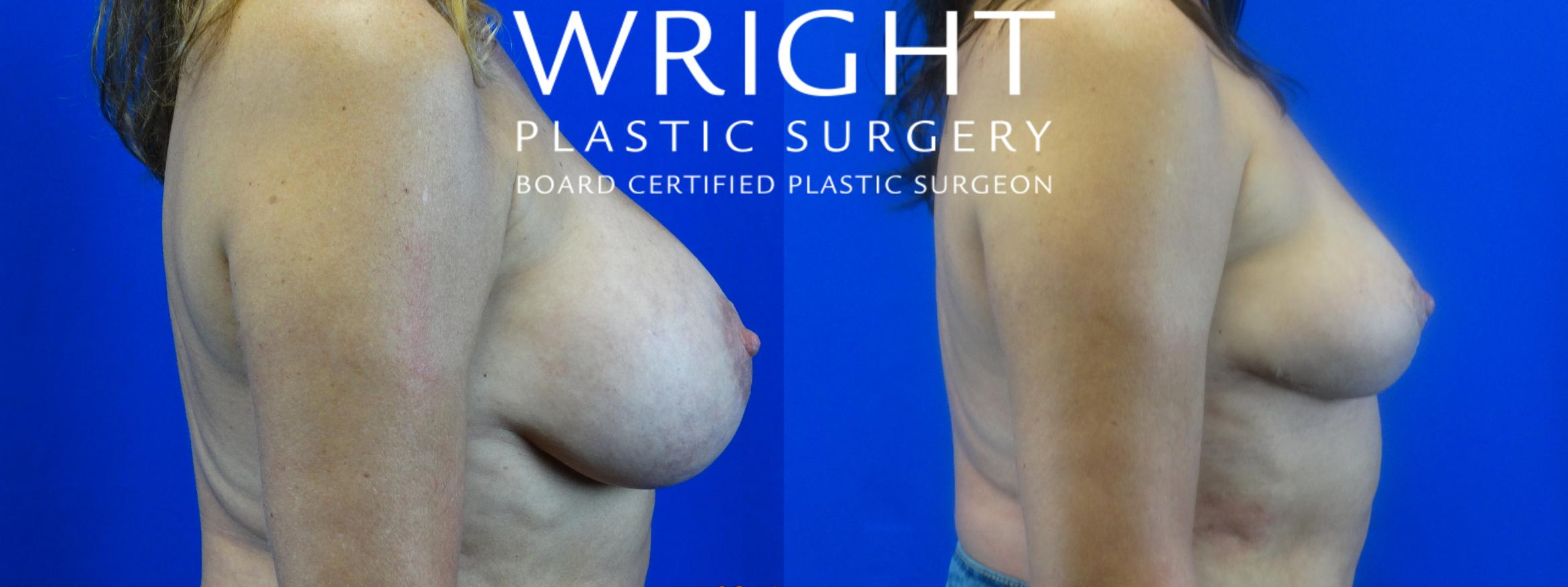 Breast Implant Removal Case 17 Before & After Right Side | Little Rock, Arkansas | Dr. Wright Plastic Surgery