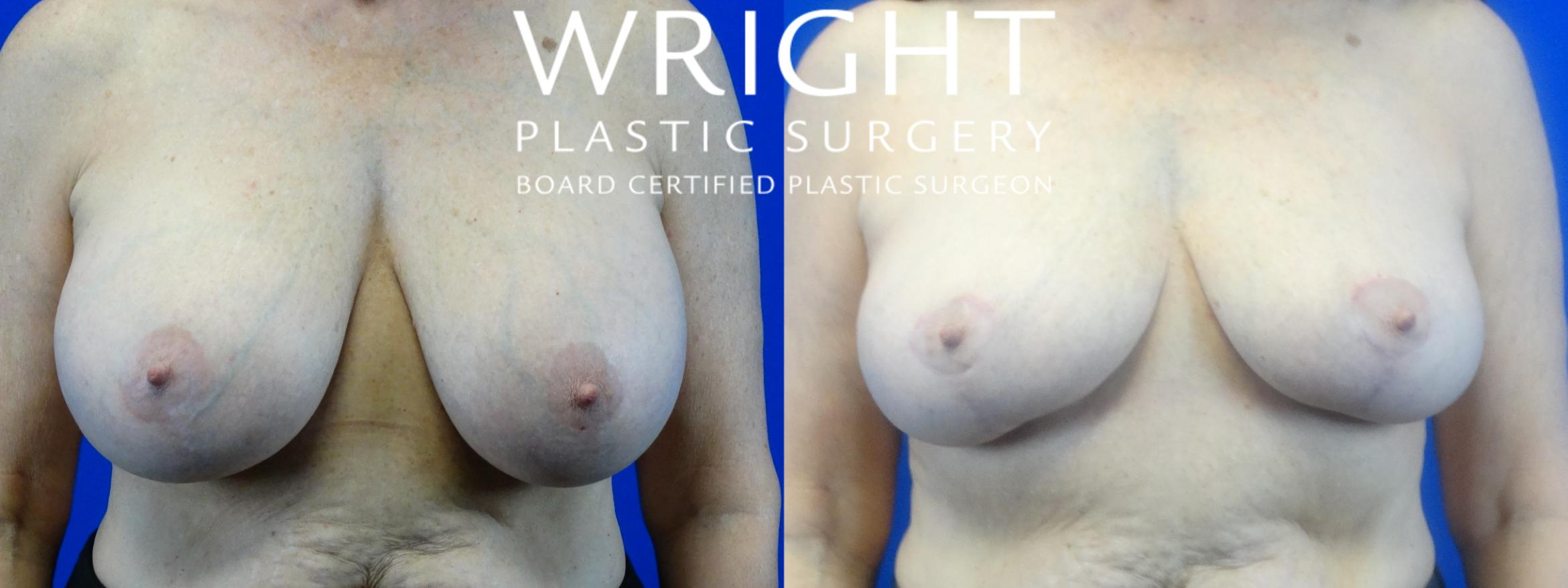 Breast Implant Removal Case 24 Before & After Front | Little Rock, Arkansas | Dr. Wright Plastic Surgery