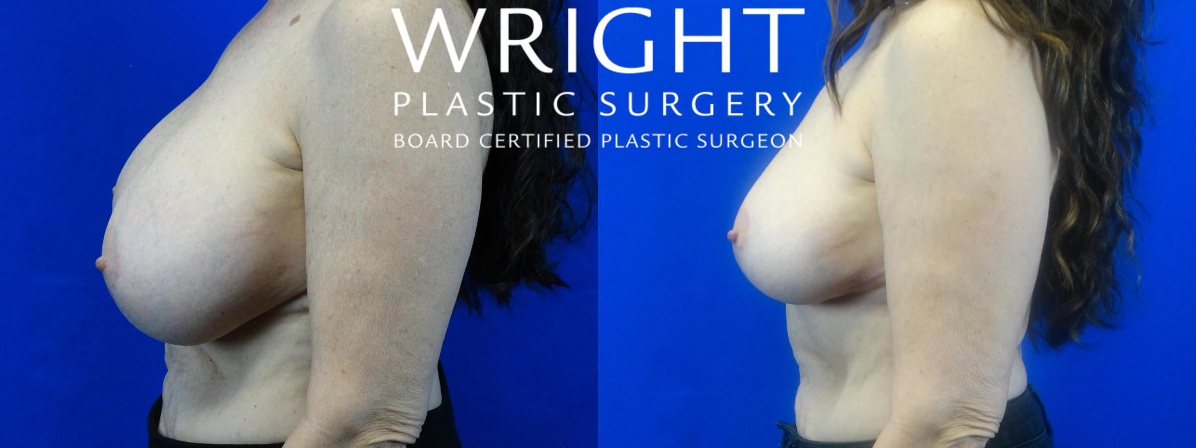 Breast Implant Removal Case 24 Before & After Left Side | Little Rock, Arkansas | Dr. Wright Plastic Surgery