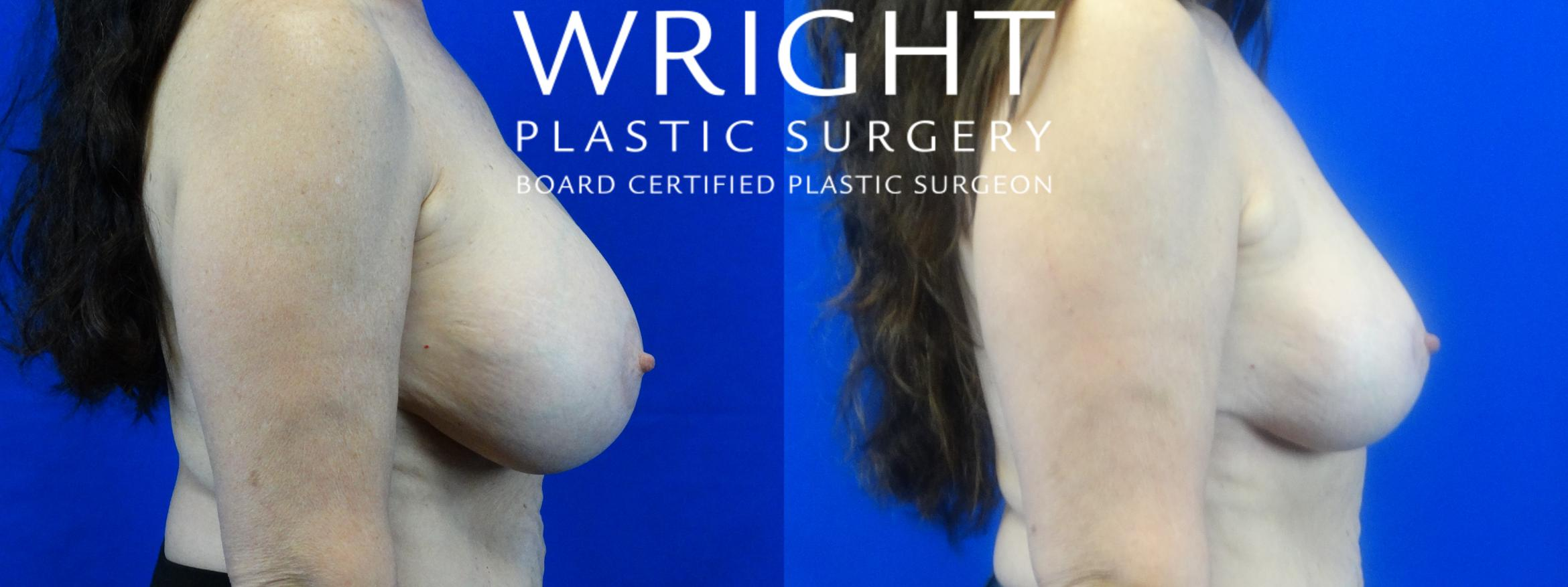 Breast Implant Removal Case 24 Before & After Right Side | Little Rock, Arkansas | Dr. Wright Plastic Surgery