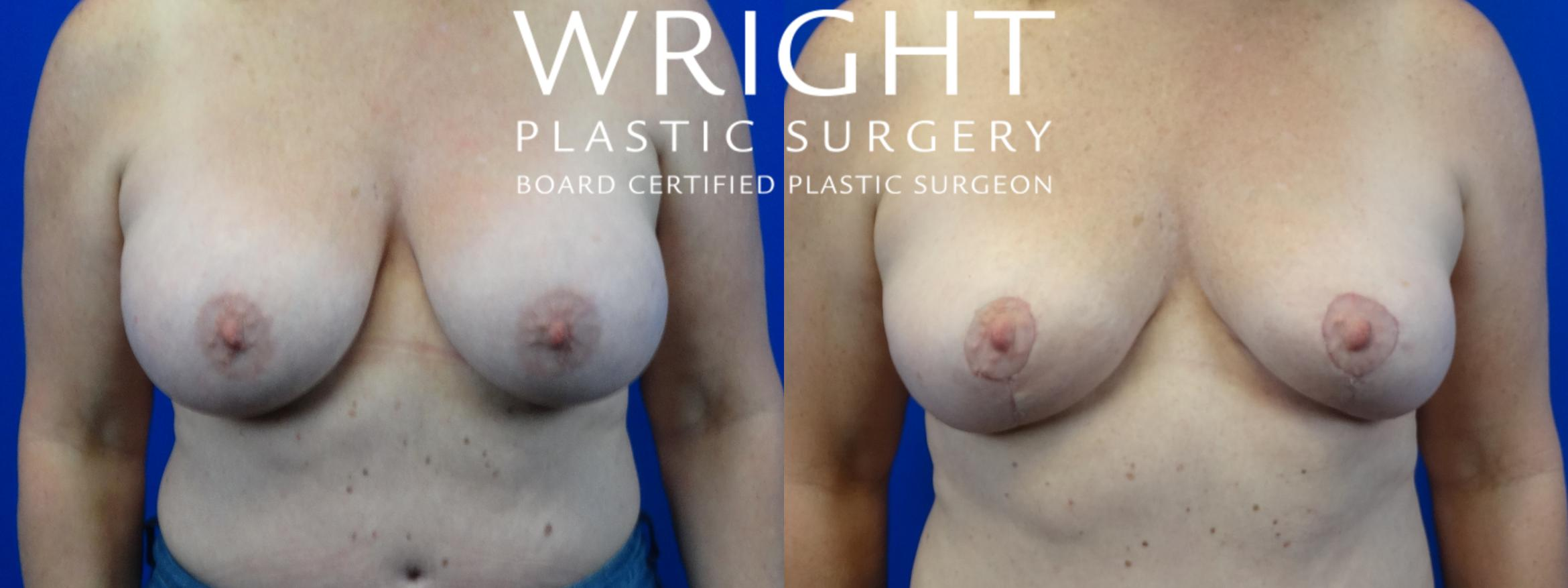 Breast Implant Removal Case 27 Before & After Front | Little Rock, Arkansas | Dr. Wright Plastic Surgery
