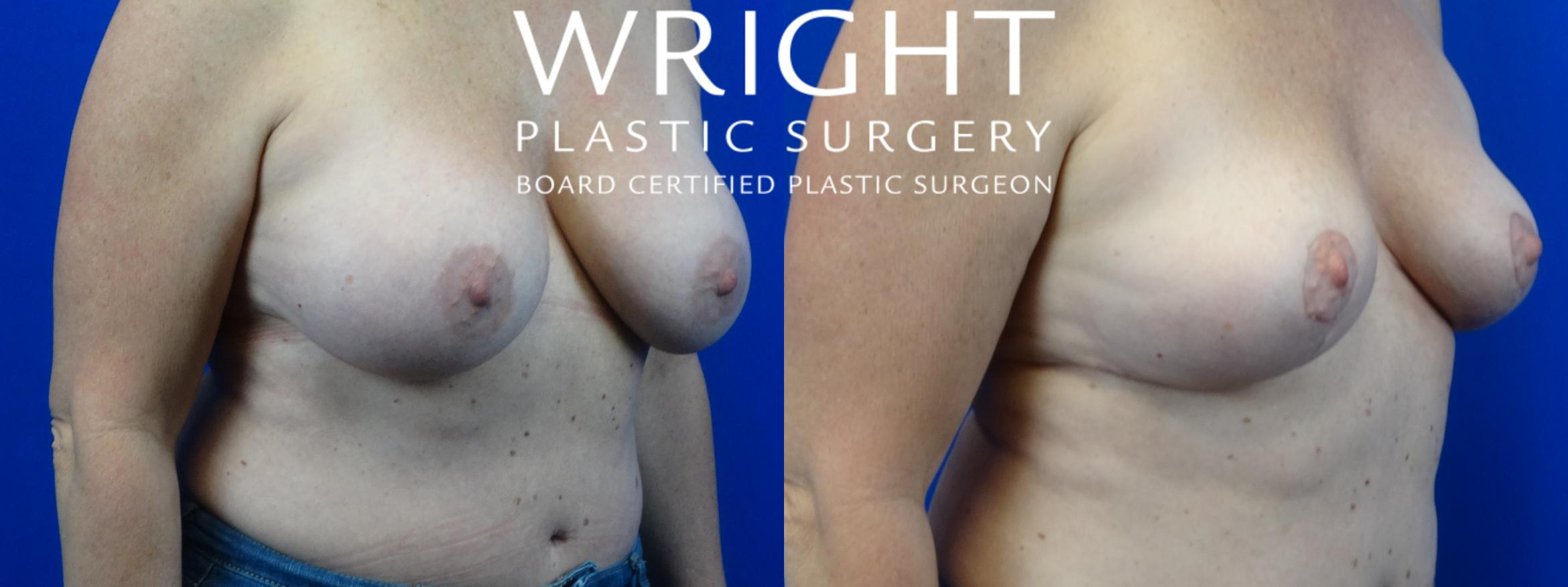 Breast Implant Removal Case 27 Before & After Right Oblique | Little Rock, Arkansas | Dr. Wright Plastic Surgery