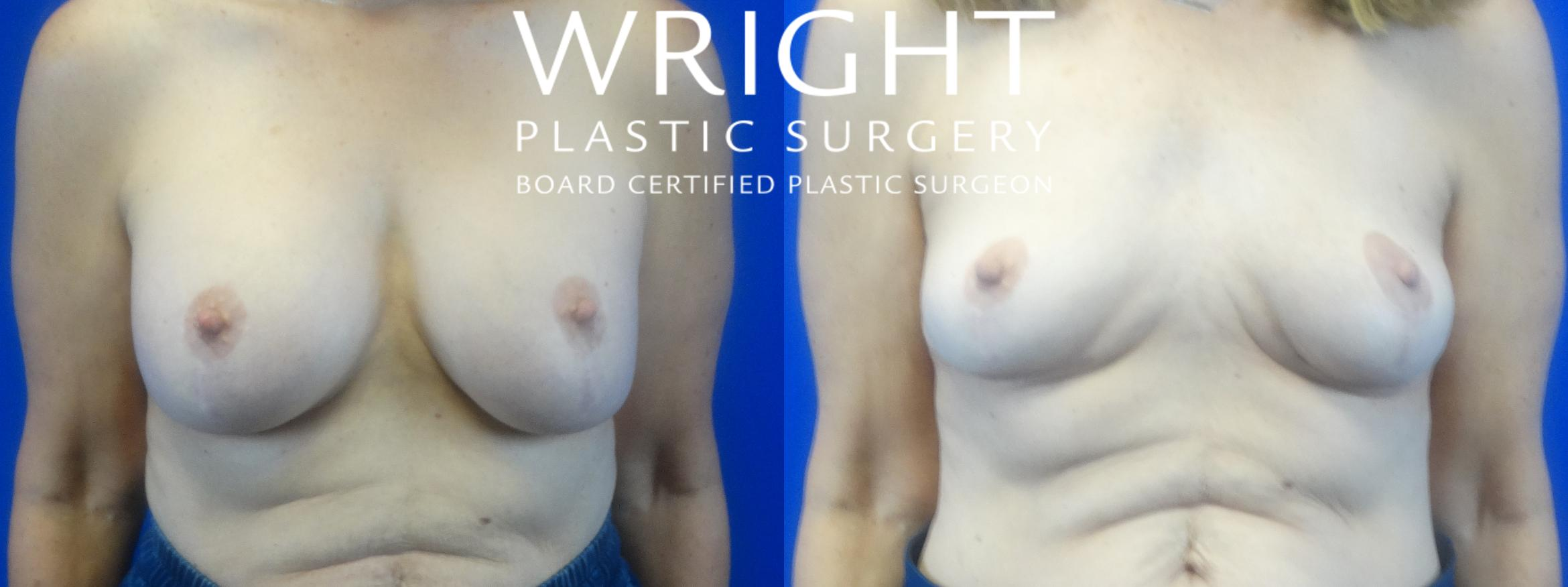 Breast Implant Removal Case 36 Before & After Front | Little Rock, Arkansas | Dr. Wright Plastic Surgery