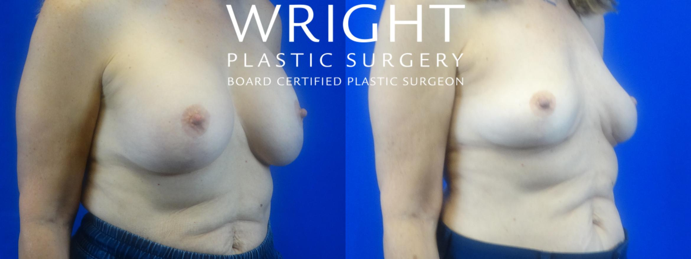 Breast Implant Removal Case 36 Before & After Right Oblique | Little Rock, Arkansas | Dr. Wright Plastic Surgery