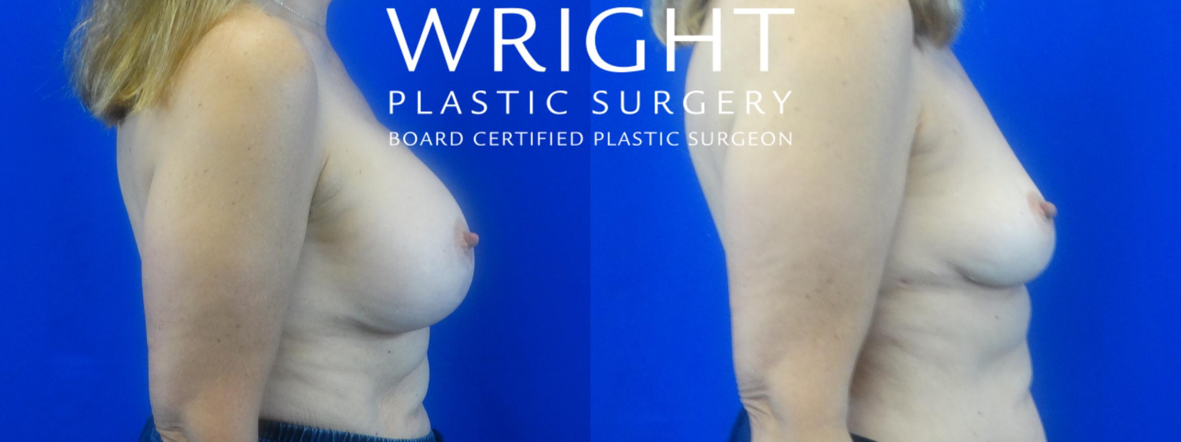 Breast Implant Removal Case 36 Before & After Right Side | Little Rock, Arkansas | Dr. Wright Plastic Surgery