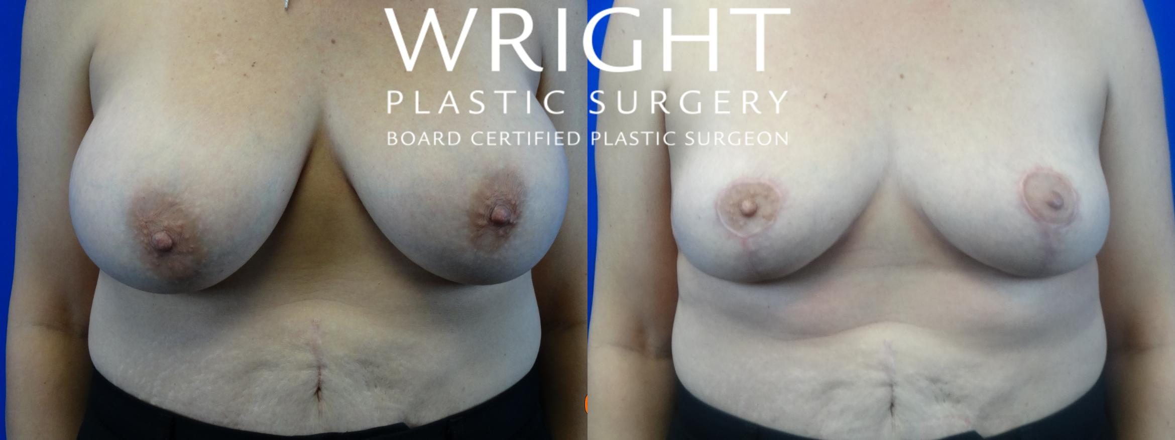 Breast Implant Removal Case 37 Before & After Front | Little Rock, Arkansas | Dr. Wright Plastic Surgery
