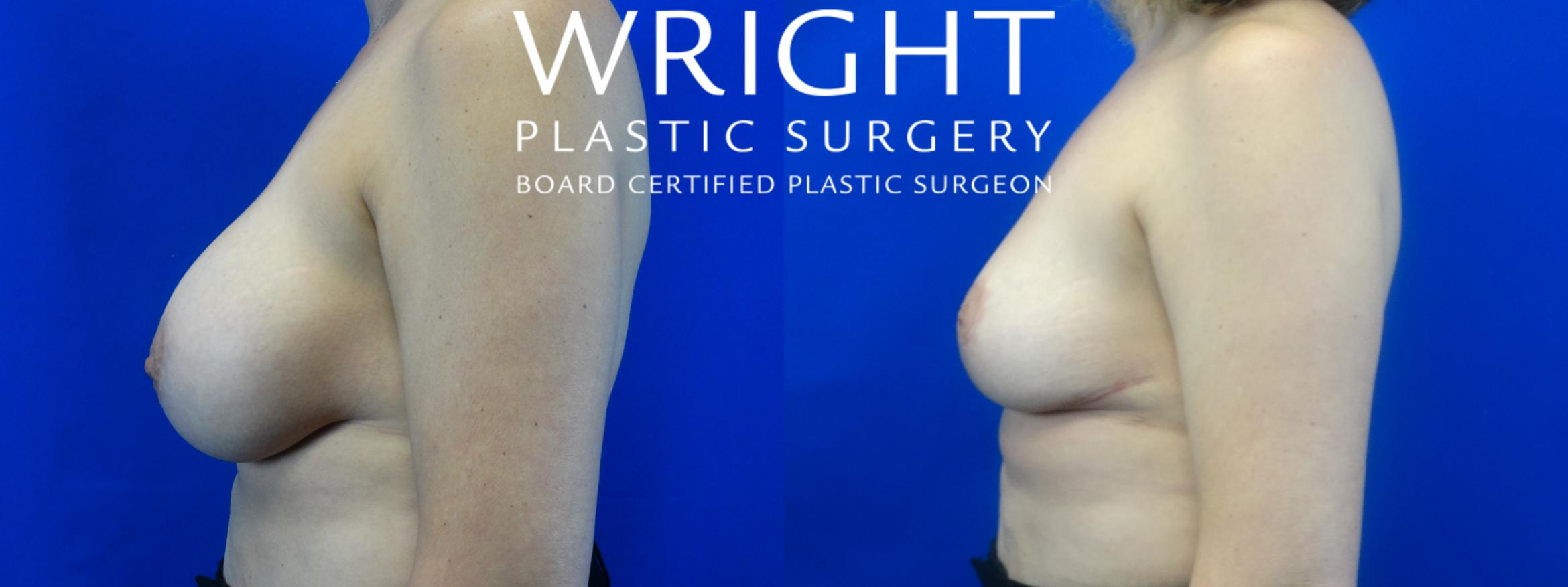 Breast Implant Removal Case 37 Before & After Left Side | Little Rock, Arkansas | Dr. Wright Plastic Surgery