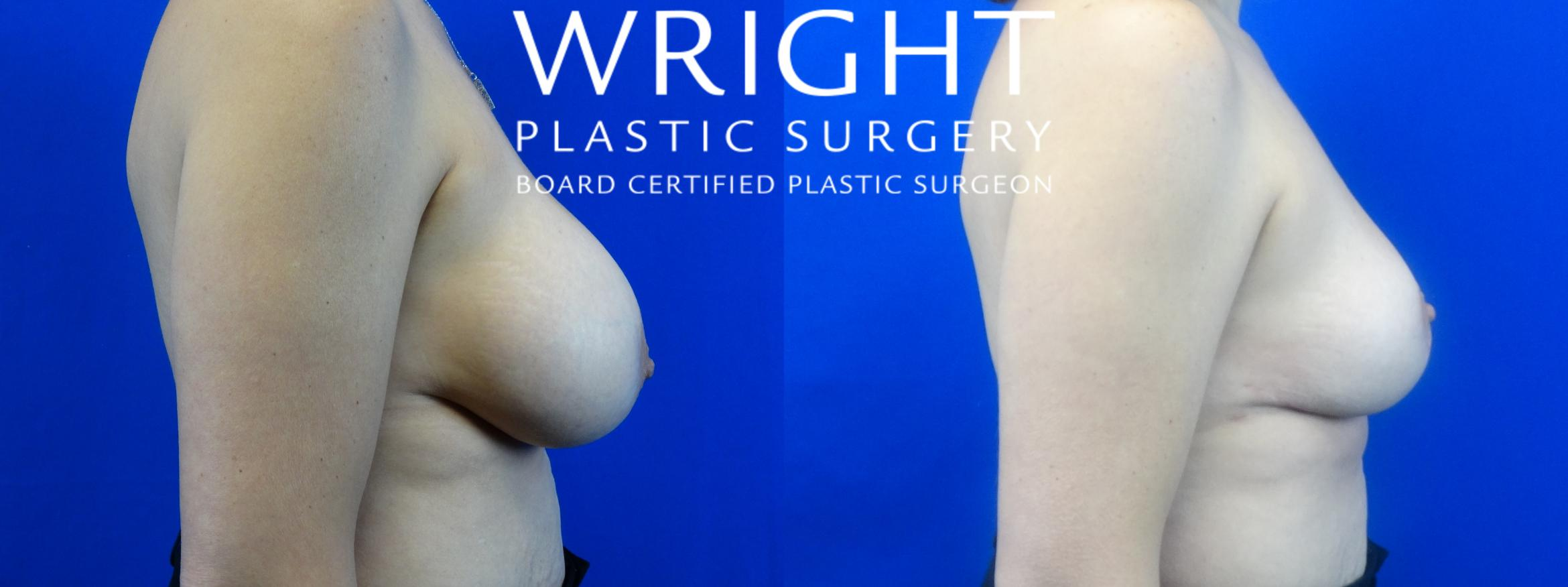 Breast Implant Removal Case 37 Before & After Right Side | Little Rock, Arkansas | Dr. Wright Plastic Surgery