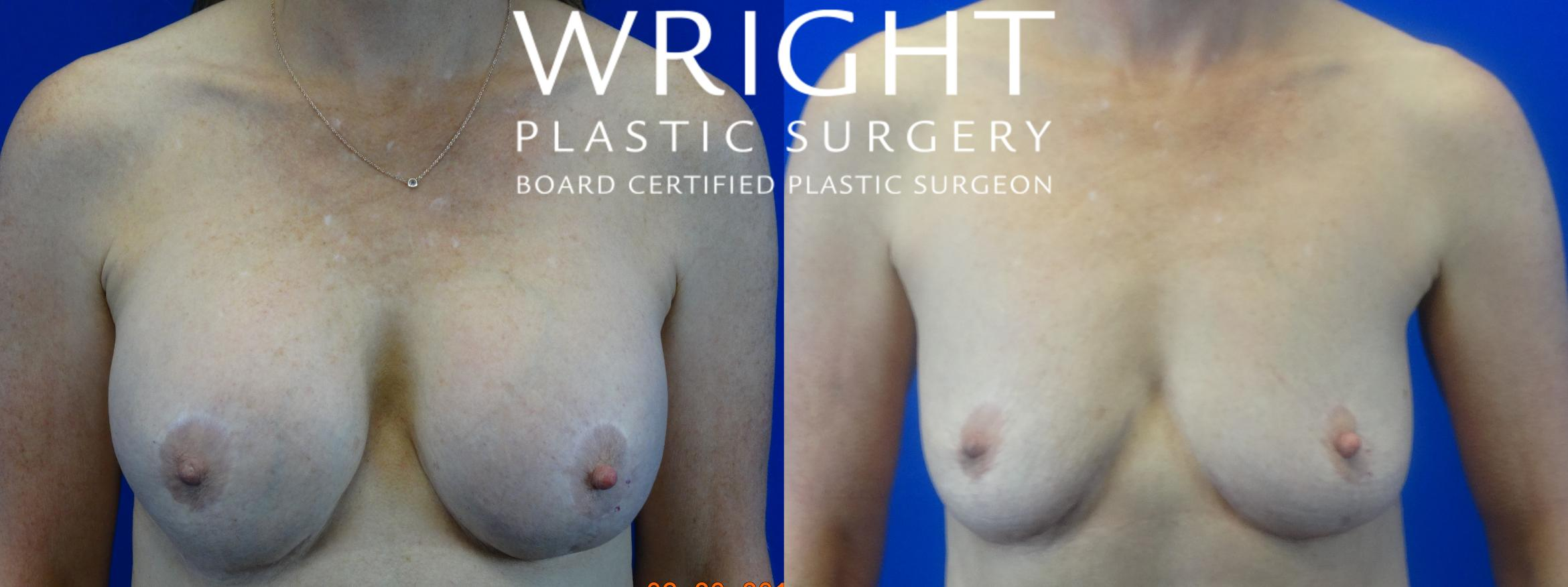 Breast Implant Removal Case 38 Before & After Front | Little Rock, Arkansas | Dr. Wright Plastic Surgery