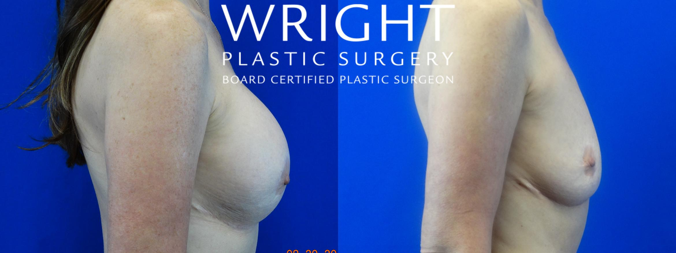 Breast Implant Removal Case 38 Before & After Right Side | Little Rock, Arkansas | Dr. Wright Plastic Surgery