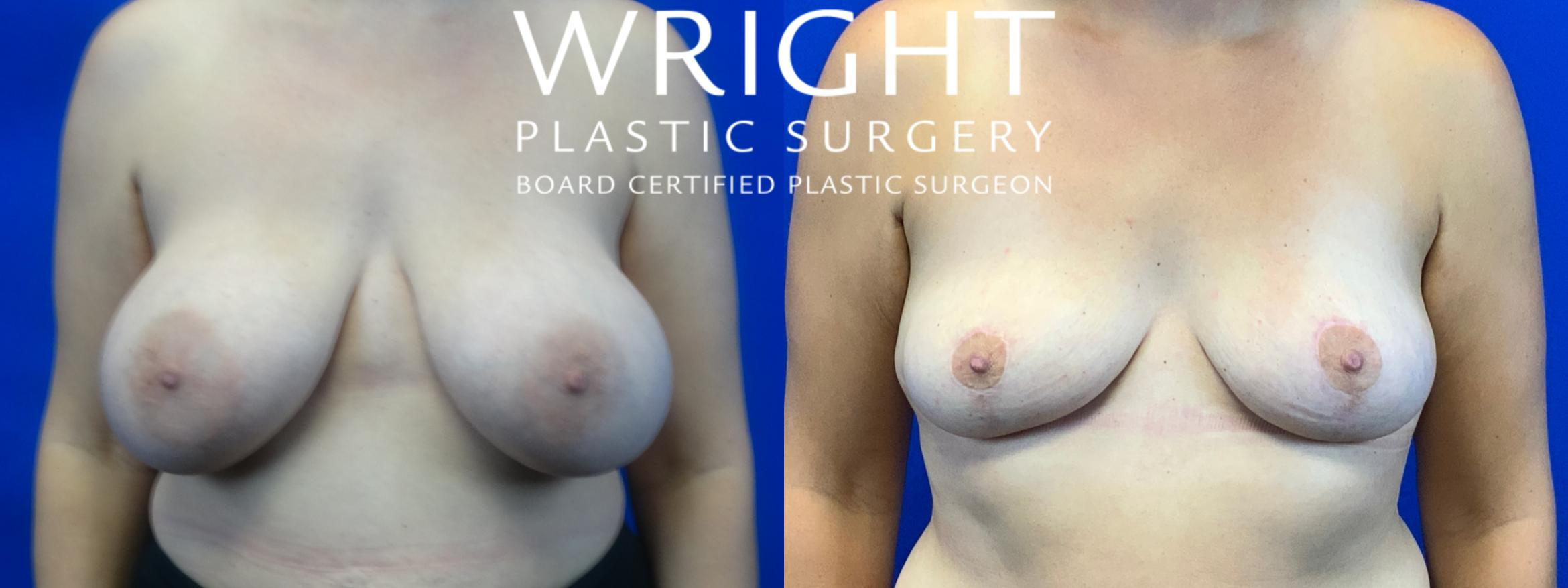 Breast Implant Removal Case 50 Before & After Front | Little Rock, Arkansas | Dr. Wright Plastic Surgery
